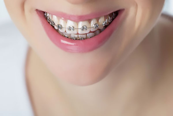 Things You Should Ask At Your Orthodontist Consultation